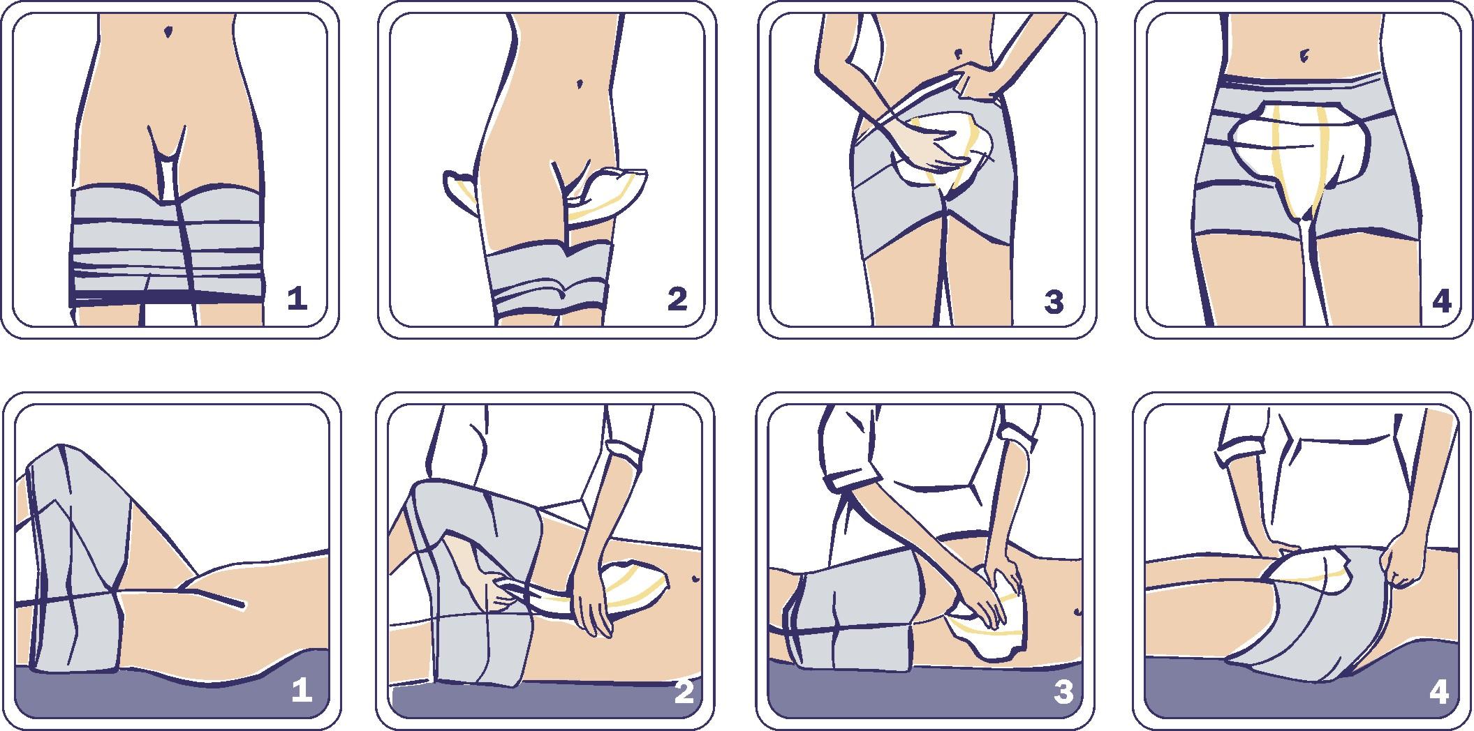 san-seni-vorlagen-anwendung-bei-inkontinenz