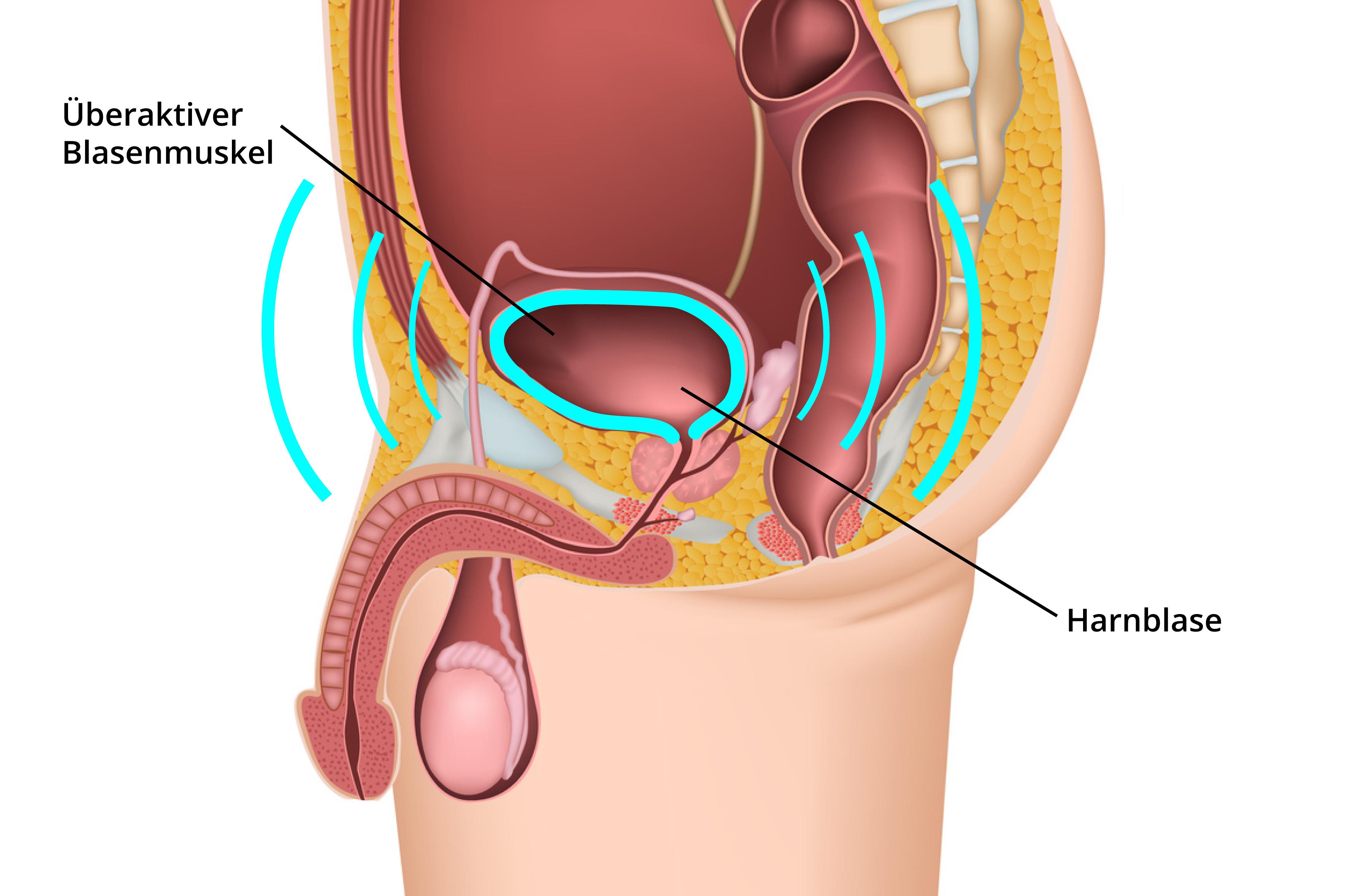 dranginkontinenz-ratgeber