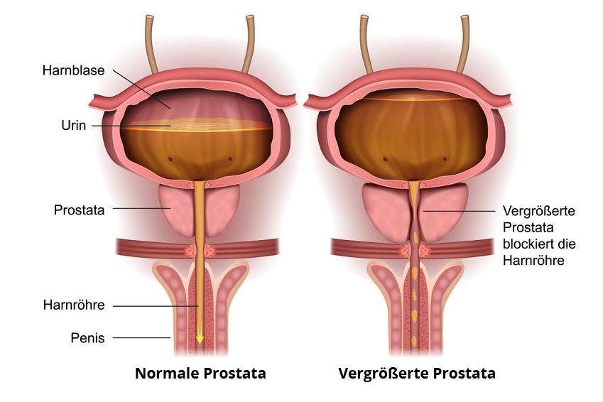 prostata operation risiko