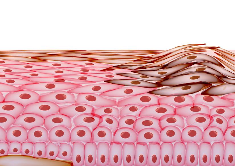 Warum Inkontinenz der Haut schadet