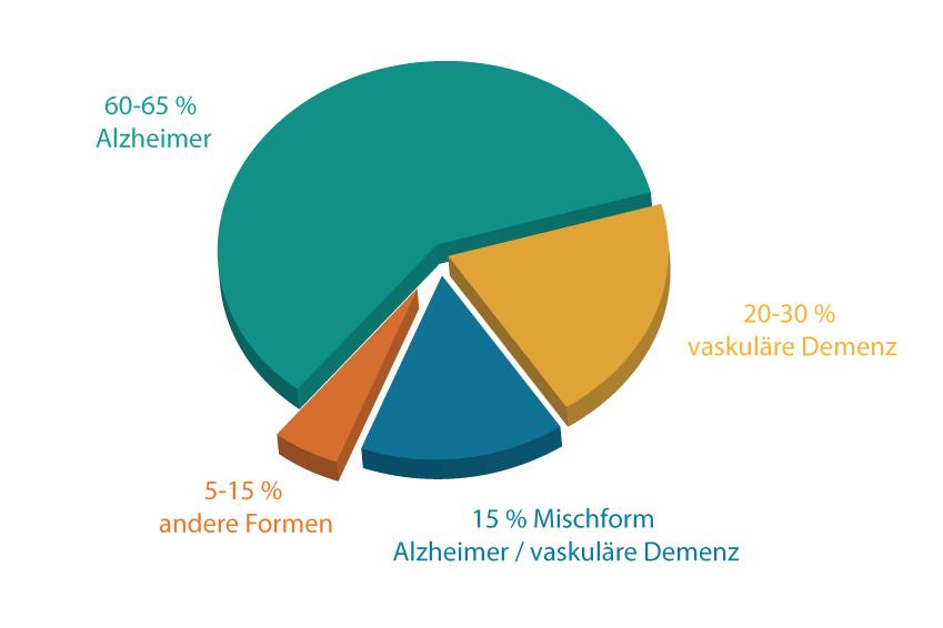 Schaubild Demenzformen