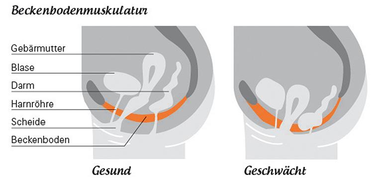 Gesenkte Beckenbodenmuskulatur