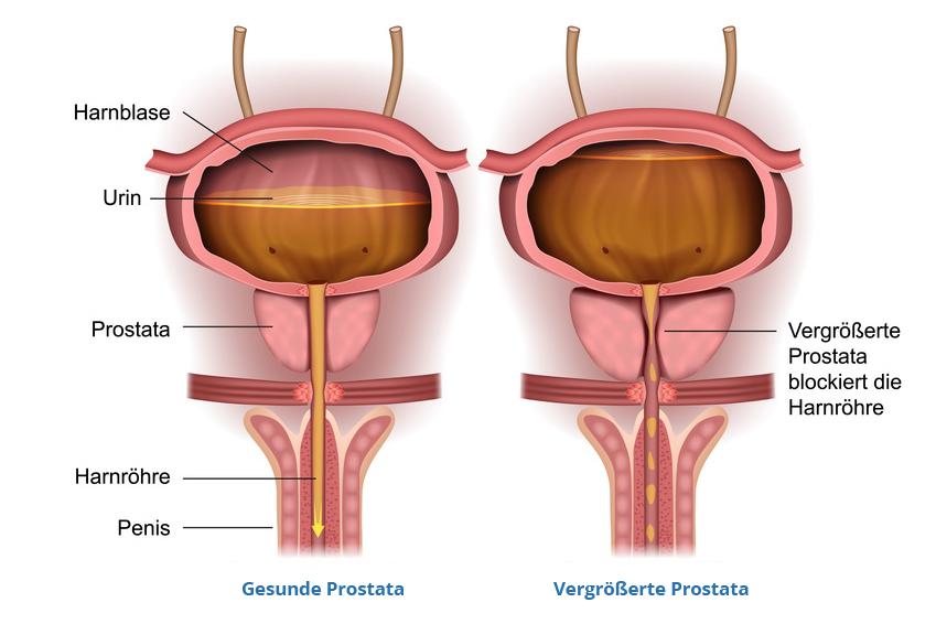 Prostatavergrößerung
